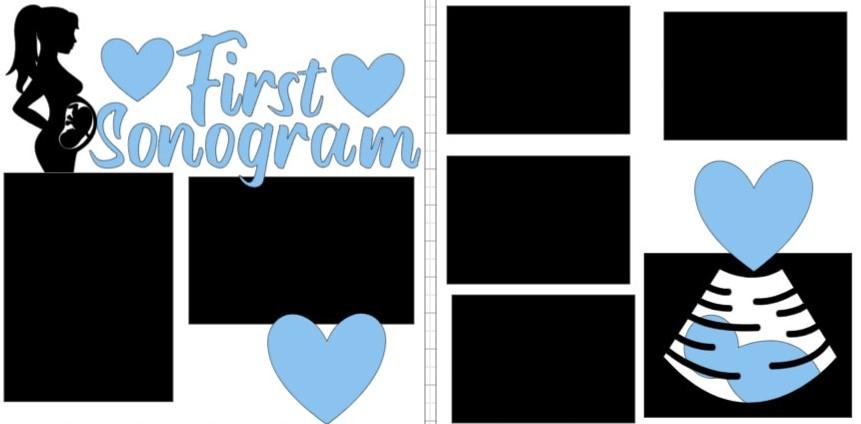 First sonogram boy-  page kit